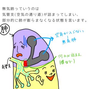 無気肺の説明